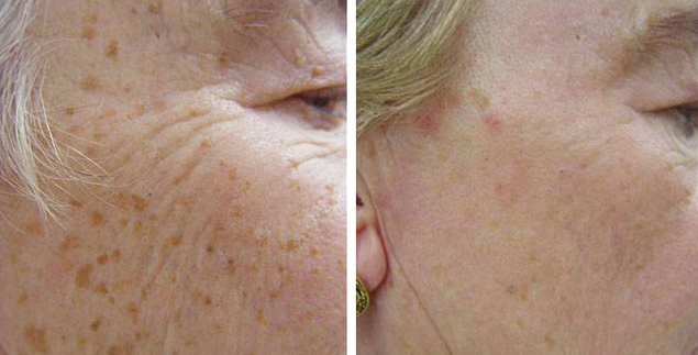 Other Treatments for Hyperpigmentation – Part 1