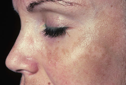 What is Melasma? What Treatment Options Are Available?