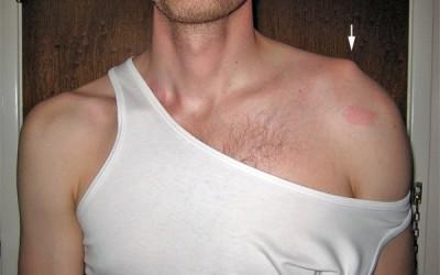 What Causes Shoulder Pains? – Part 2