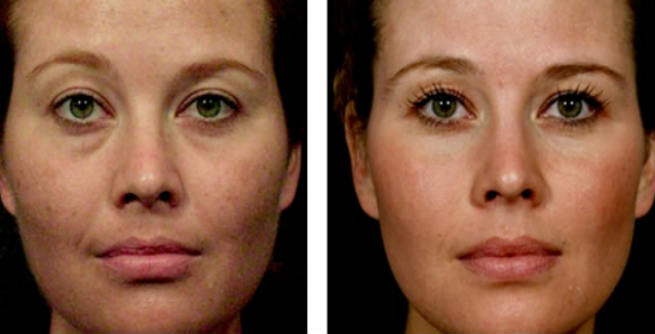 What Is Sculptra?