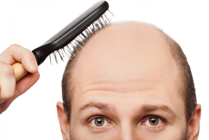 What Is Follicular Unit Extraction (FUE)?