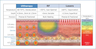Ultherapy Lasers