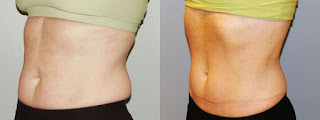 Results after fat freezing treatment