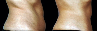 side belly result after coolsculpting treatment