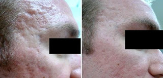 Side Forehead Results after Fractional CO2 Laser