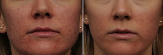 Results After Skin Laser Treatment