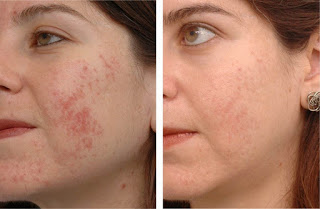 Before and After LED Photomodulation Therapy