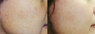 Before & After Laser Treatment for Age Spots
