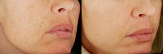 Results After Skin Laser Treatment