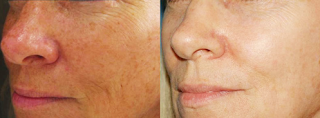 Laser Treatment Results for Age Spots