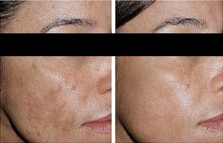 Results After Carbon Laser Peel Treatment for Pigmentation