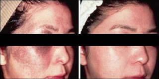 Effective Results with Carbon Laser Peel