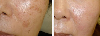 Results after Stem Cell Therapy for Age Spots