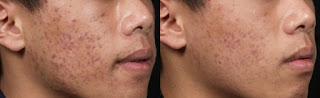 Before and After Obagi Skincare