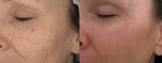 Laser Resurfacing for Wrinkles Before and After