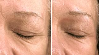 Fractional CO2 Laser for Eye Area Wrinkles
