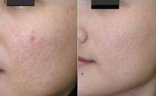 Dermaroller Results for Acne Scars