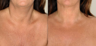 Use Dermaroller to reduce fine lines on the chest area