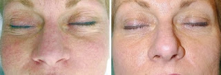 Before & After Using Dermaroller to Reduce Face Wrinkles