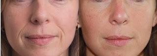 Dermaroller for lower face fine lines