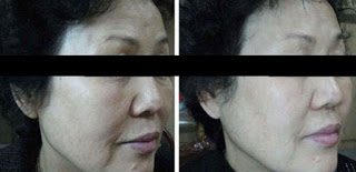 Before and After Ultherapy Treatment for Wrinkles