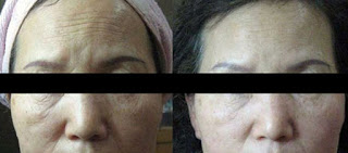 Ultherapy Reduce Forehead Wrinkles