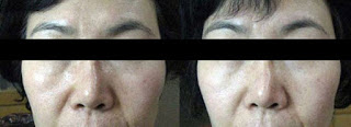 Results after Ultherapy HIFU Treatment