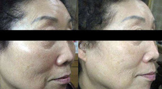 Ultherapy Reduce Fine Lines