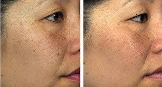 LED Light Therapy Before and After for Age Spots