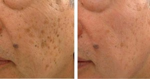 Age Spots Removal with LED Light Therapy
