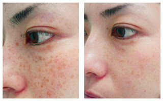 Age Spots Treatment with LED Photomodulation Therapy