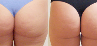 Buttocks Before & After Results Fat Melting Injections