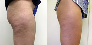 Side Hips Results After Fat Melting Injections
