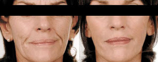 Mesotherapy Treatment Reduce Sagging Skin & Wrinkles