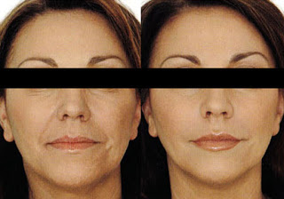 Before & After Mesotherapy Reducing Wrinkles