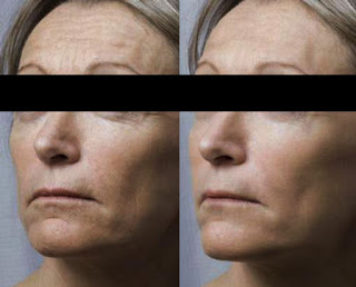 Result of Reducing Wrinkles & Fine Lines After Mesotherapy