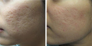 Results After Microdermabrasion for Acne Scars