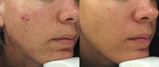 Before and After Microdermabrasion Therapy for Acne Scars
