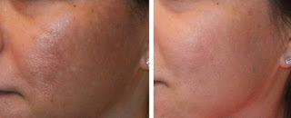 Results of Microdermabrasion for Pigmentation