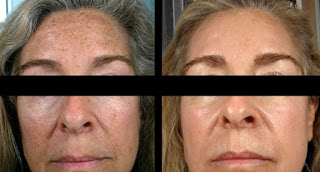 Desired Outcome with Microdermabrasion for Pigmentation