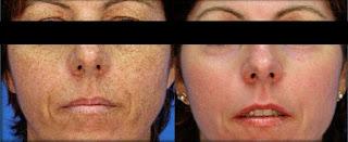 Results After Microdermabrasion for Skin Pigmentation