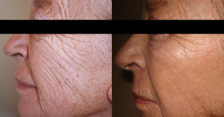 Microdermabrasion Reduce Fine LInes