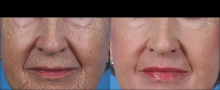 Before & After Microdermabrasion Treatment for Wrinkle Problems