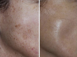 Before and After Using Obagi for Age Spots Problem
