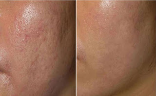 PRP Therapy Before and After for Acne Problem