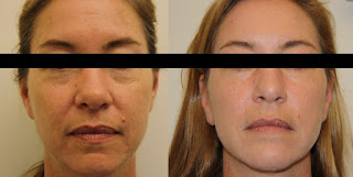 Results after Sculptra for Wrinkles
