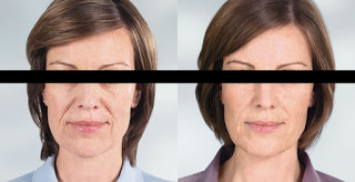 Use Sculptra for Wrinkle Problems