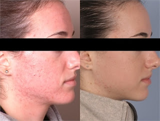 Before and After SilkPeel Treatment for Age Spots
