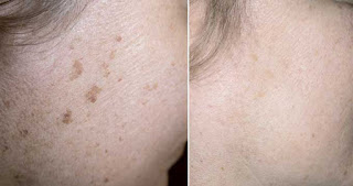 Age Spots Upclose: After SilkPeel Treatments