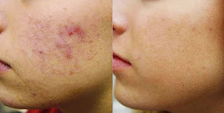 Effective Results after Skin Peel Treatment
